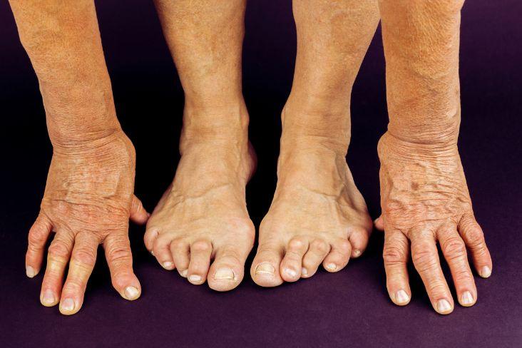 rheumatoid-arthritis-1