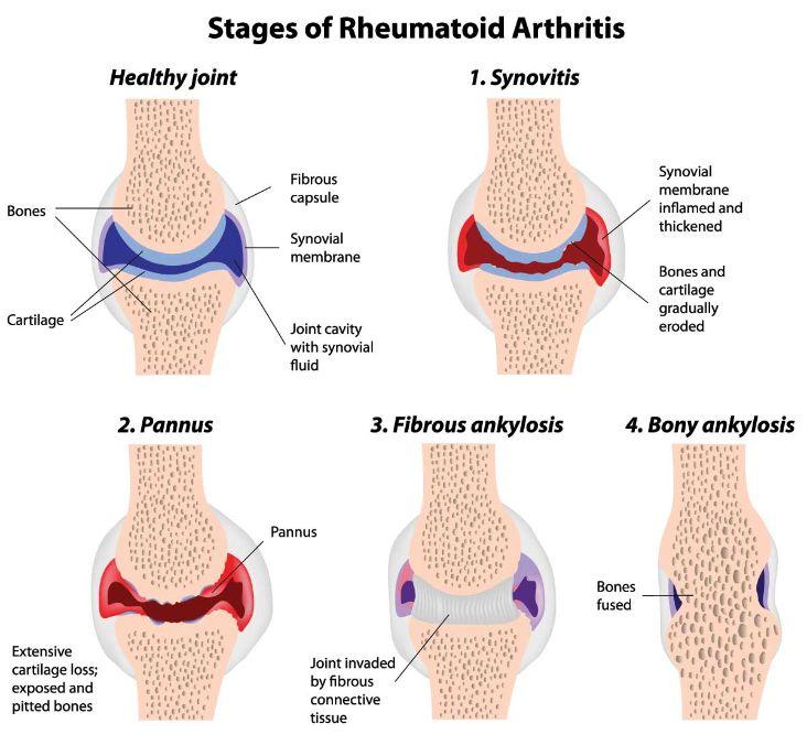 rheumatoid-arthritis-2
